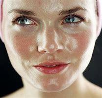 Oily Skin – EssentialOils
