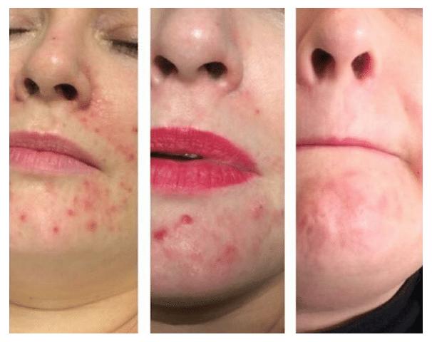 acne_touched_salon